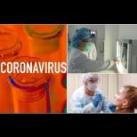 Това са известните засега НЕТИПИЧНИ симптоми на COVID-19, които обикновено се пренебрегват: