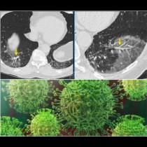Тревога от Япония: Коронавирусът без симптоми води до аномалия в белите дробове: