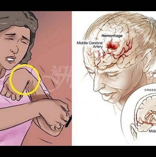 Професор по неврология-Ето това са рисковите фактори за появата на инсулт
