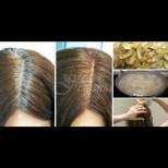 Как да върнем цвета на побелелите коси с картофена отвара - лесно, евтино и безопасно: