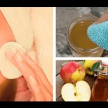 Ябълковият оцет е чисто злато-Ето как да го използвате правилно, за да извлечете всички ползи