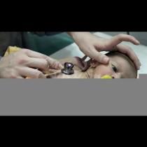 Бебе претърпя 9 сърдечни операции и инсулт