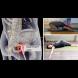 10 упражнения, за да се отървете от ишиас, болки в тазобедрената става и болки в долната част на гърба!