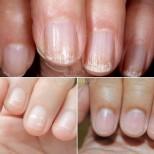 Болести, които могат да бъдат разпознати по външния вид на нокътя