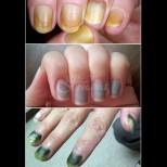 Цветът на ноктите е индикатор на здравето - най-опасните състояния и как да си помогнем: