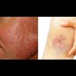 4 домашни лека срещу разширени вени