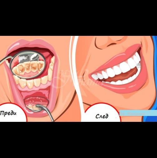 Домашна содена паста чисти зъбен камък по-добре от зъболекар - намазваш, изчакваш и сам пада! Ефикасно, без болка: