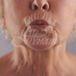 Домашна маска убиец на бръчките около устата