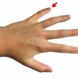 Масажирането на малкия пръст може да ви помогне за много здравословни проблеми без да ходите на лекар