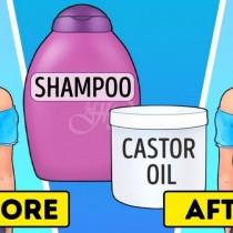 Златните рецепти за използване на рициново масло-За косата, лицето, ръцете