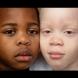 Мляко с шоколад: Никой не вярва, че тези красиви деца са близнаци! Историята, която удиви света (Снимки):