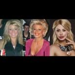 Ето кои звезди си оперираха носа (снимки преди и след)