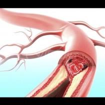 Кои храни разреждат кръвта по-добре от аспирина: