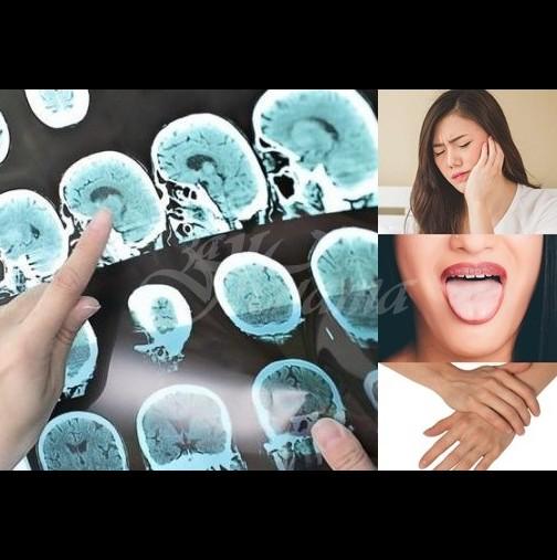 Ако усетите тези необичайни симптоми, инсултът чука на вратата!