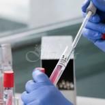 Науката за коронавируса-4-5 дни от заразяването не сте зарˋазен