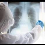 Пет РАННИ симптома за развитие на пневмония:
