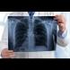 ТРИ скрити симптома на пневмония, които трябва да знаете: