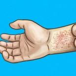 10 симптома, че имате проблем с бъбреците