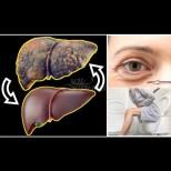 Невидимите сигнали на черен дроб, който се задъхва от токсини - погледни в огледалото, имаш ли ги?
