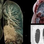 Ето как COVID смила белите дробове - даже при пушачи не е толкова зле! (Снимки):
