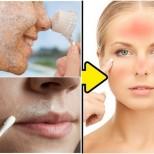 5 продукта, които умираме да си слагаме на лицето, а после се чудим защо сме в акне и рани: