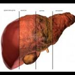Признаците на задръстен черен дроб, които не трябва да игнорирате!