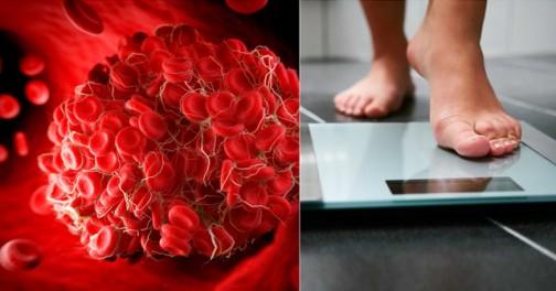 Хората с тази кръвна група са програмирани да дебелеят лесно: