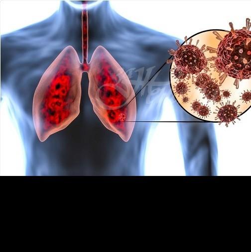Как лесно у дома да проверите състоянието на белите дробове: