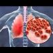 Седем признака, че може да имате пневмония