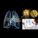 Как да разпознаем пневмония без кашлица?