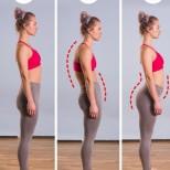 Бърз тест, с който ще разберете имате ли гръбначно изкривяване