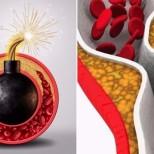 Защо почистването на кръвоносните съдове е необходимо за хора над 30 години
