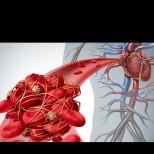 Как да разбереш, че в тялото ти има кръвен съсирек, който бавно пълзи към сърцето и мозъка: