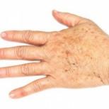 Как да се отървете от старчески петна по ръцете си, когато са се появили преди да им дойде времето