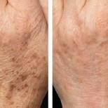 Как бързо да премахнете тъмните възрастови петна по ръцете си: 7 прости ефективни средства