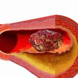 ТРИ ранни симптома, че ви се образува тромб: