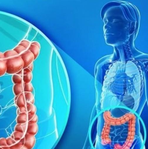 90% от болестите биха могли да бъдат избегнати, ако всеки знае за важната роля на червата