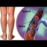 С тромбозата шега не бива - 5 ефективни упражнения за премахването ѝ:
