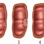 6 тихи симптоми на рак на дебелото черво, които не бива да пренебрегвате!