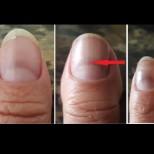 COVID белязва ноктите - ето как да разберем по тях, че сме прекарали вируса: