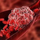 Какви са първите признаци на тромбоза