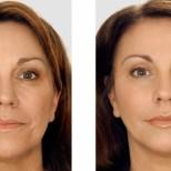Как да направим кожата си красива отново