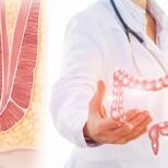 Хемороиди: просто средство за бързо и 100% елиминиране