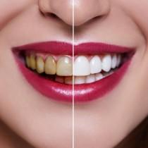 Не ми се налага да лекувам зъбите си над 7 години. Просто следвам 5-те препоръки на моя зъболекар: