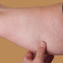Красиви и тонизирани ръце са възможни на всяка възраст-само 4 упражнения!