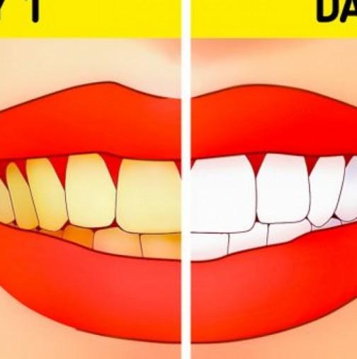 Търкаш зъбките само с тази кора и след няколко дни ти е гарантирана холивудската усмивка