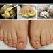 6 народни убиеца на гъбичките по ноктите - лято иде, погрижете се!