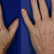 Подмладяване на ръцете: 5 домашни рецепти за премахване на бръчки