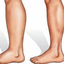 Подути и болезнени крака: 9 причини и 5 ефикасни рецепти