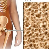 Костни протектори срещу остеопорозата-Дават енергия и правят костите млади-Ще тичате из двора като младо момиче!